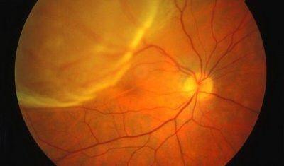 Resultado de imagen de desprendimiento de retina