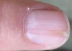 eritroniquia y carcinoma