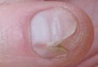eritroniquia y melanoma